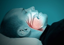 Sleep Apnea at Dream Sleep Center